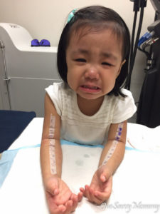 Skin Prick Test Kids Toddler